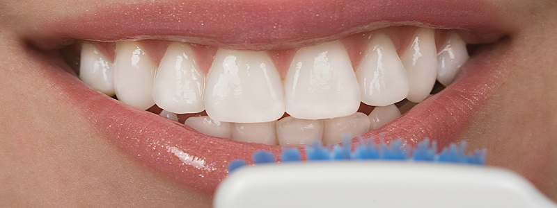 smiling mouth with veneers